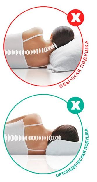 Ортопедическая подушка и обычная